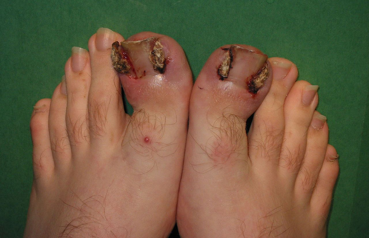 Fungus Nail Causes Top 10 Natural Remedies For Toenail Fungus | Cure ...