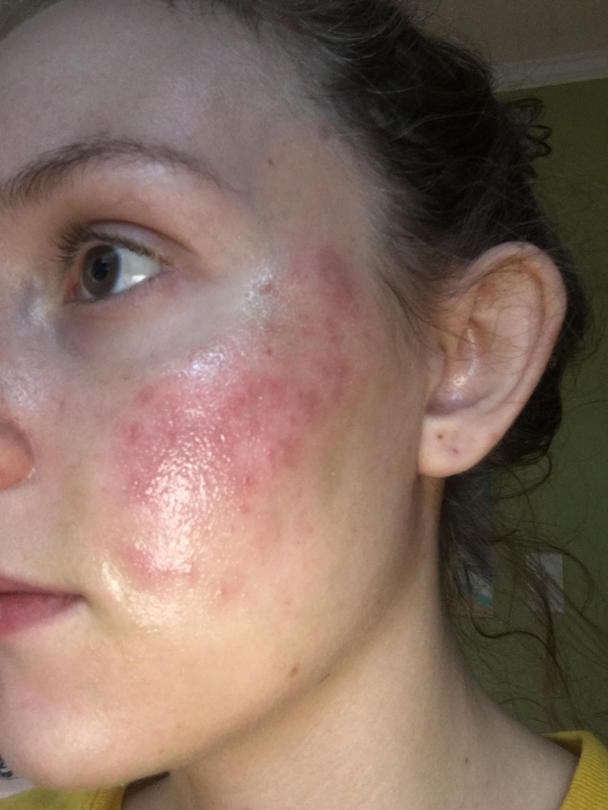 What Is A Lactic Acid Peel—And Will It Help Your Skin Look Younger What Is A Lactic Acid Peel—And Will It Help Your Skin Look Younger new foto