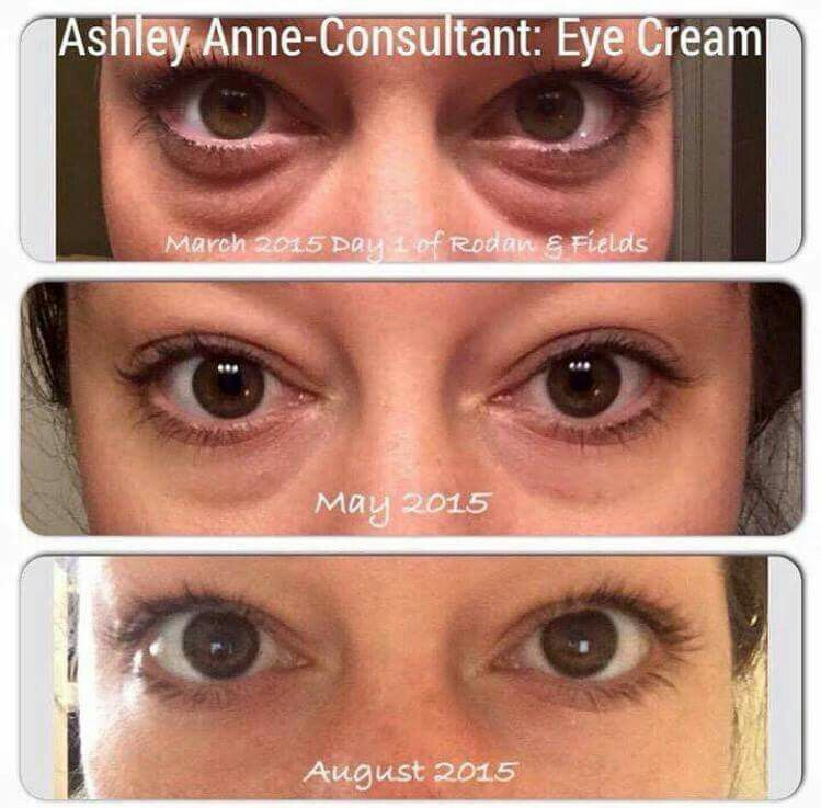 Rodan And Fields Eye Cream Works Miracles Another Awesome Before And After Pic Contact Ht Multifunction Eye Cream Rodan And Fields Eye Cream For Dark Circles