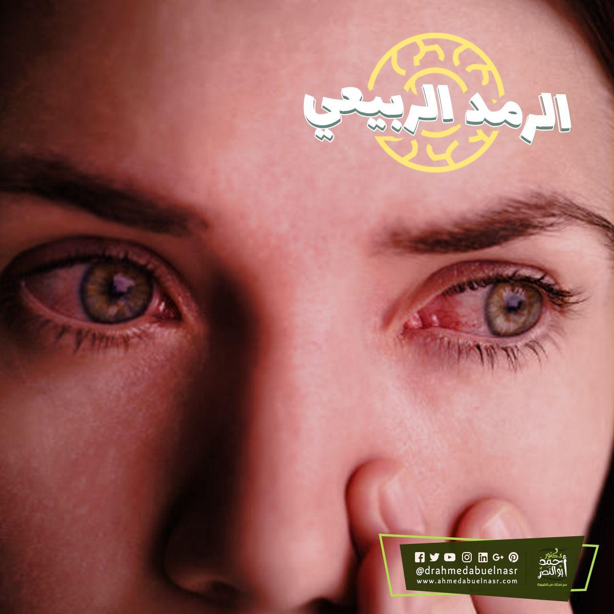 الرمد الربيعي هو مرض حساسية وإلتهاب ملتحمة العين وسمي بالرمد الربيعي نسبة إلى فصل الربيع ويحدث عندما تلامس حبوب اللقاح أو الأتربة ومسب Nose Ring Nose Rings