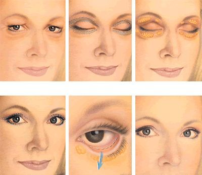 The best surgical and nonsurgical options for under eye bags