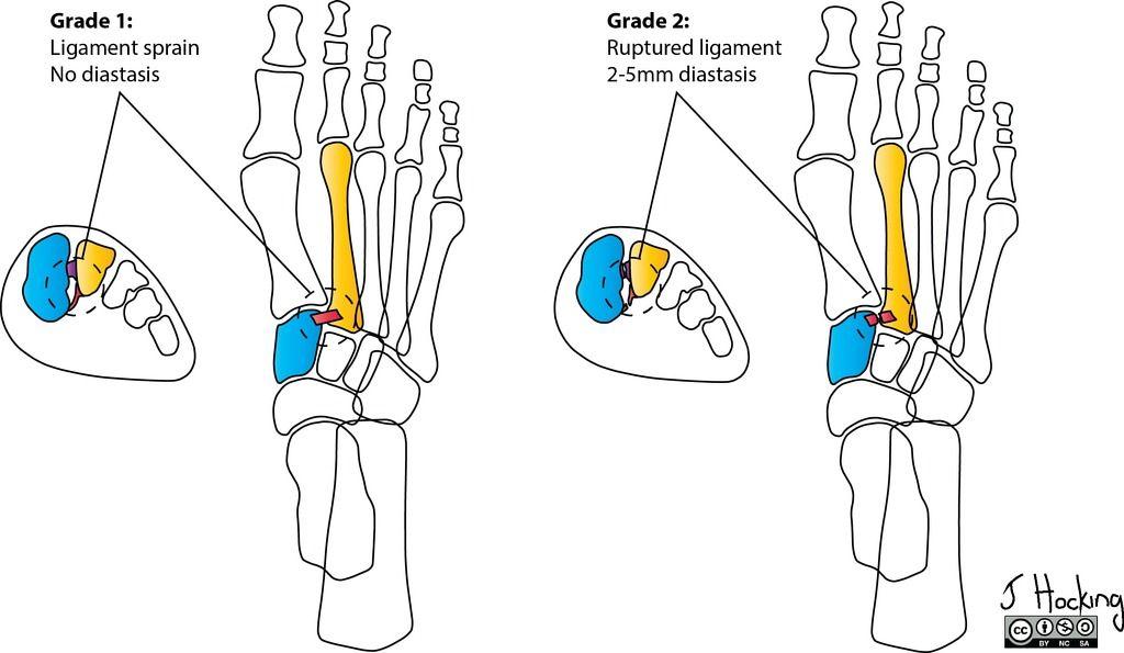 Lisfranc injury: Nunley-Vertullo classifications - illustrations ...