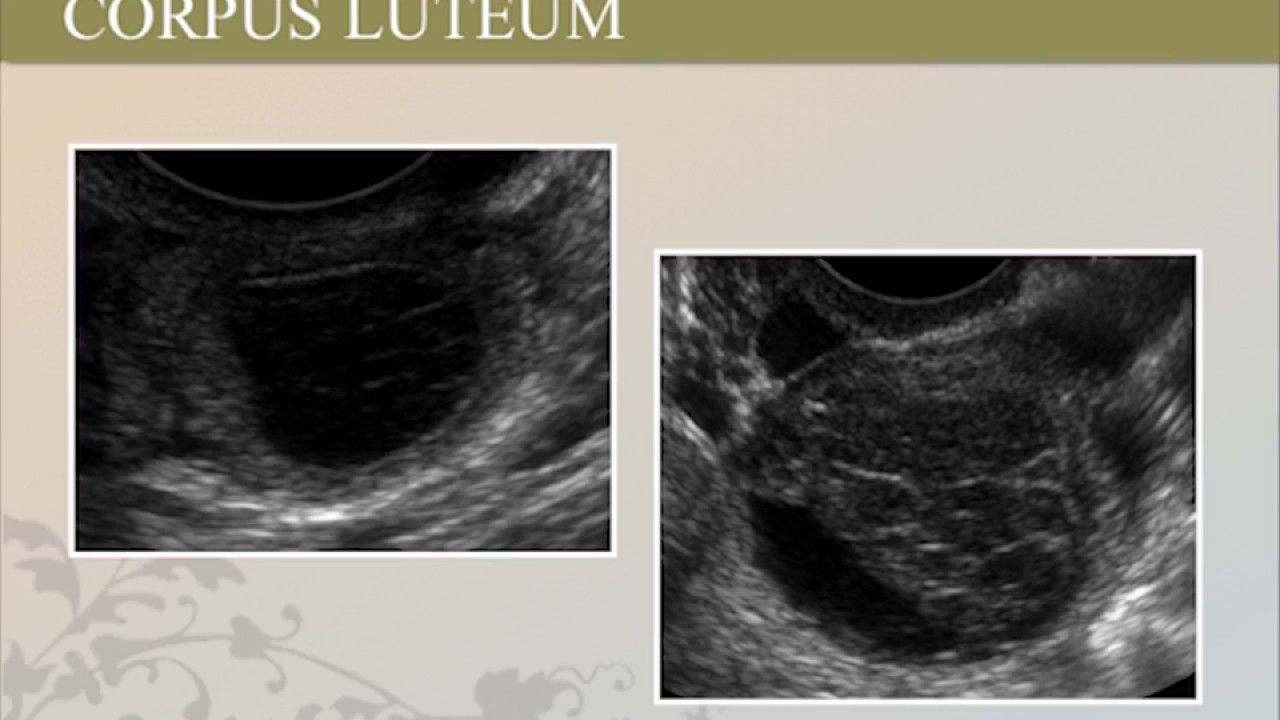 How to Identify Normal Fetal Anatomy Ultrasound On 1st Trimester ...