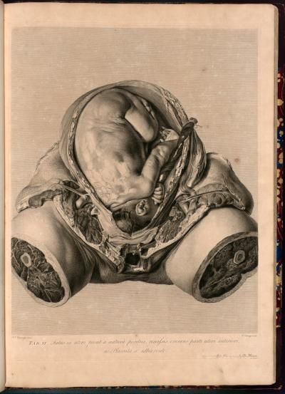 Anatomia uteri humani gravidi  Author: Hunter, William, 1718-1783  Published: Birmingham : Printed by J. Baskerville, sold in London by S. Baker and G. Leigh [etc.], 1774