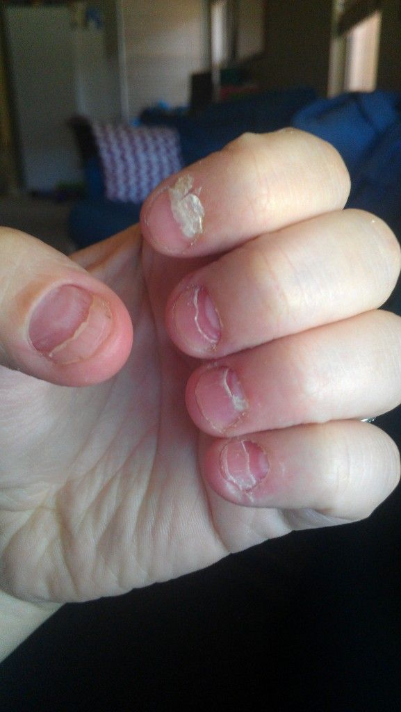 My nails peeling off after Hand, Foot, Mouth Disease... no fun ...