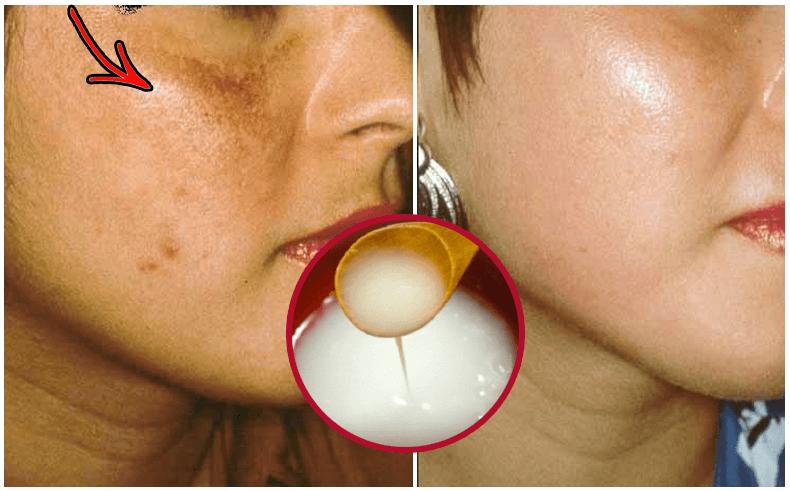 Cremas naturales para arrugas y manchas