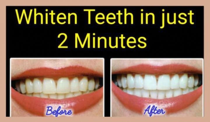 How to whiten yellow teeth naturally at home in 2 minutes