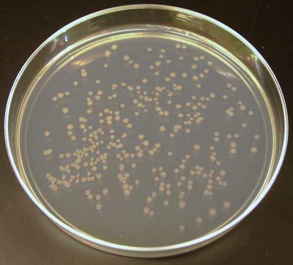 E Coli On Nutrient Agar Plates Petri Dish Growth Medium