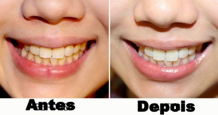 3 Dicas Caseiras Para Clarear Os Dentes Naturalmente Dicas