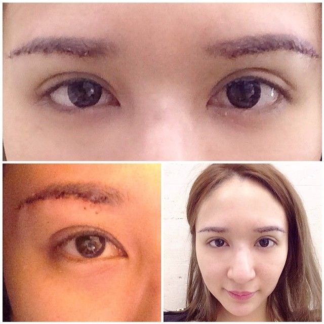 Thank you Dr. Choi & JW Plastic Surgery Korea for making ...