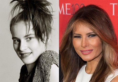 Melania Trump Plastic Surgery Before And After Photos ...