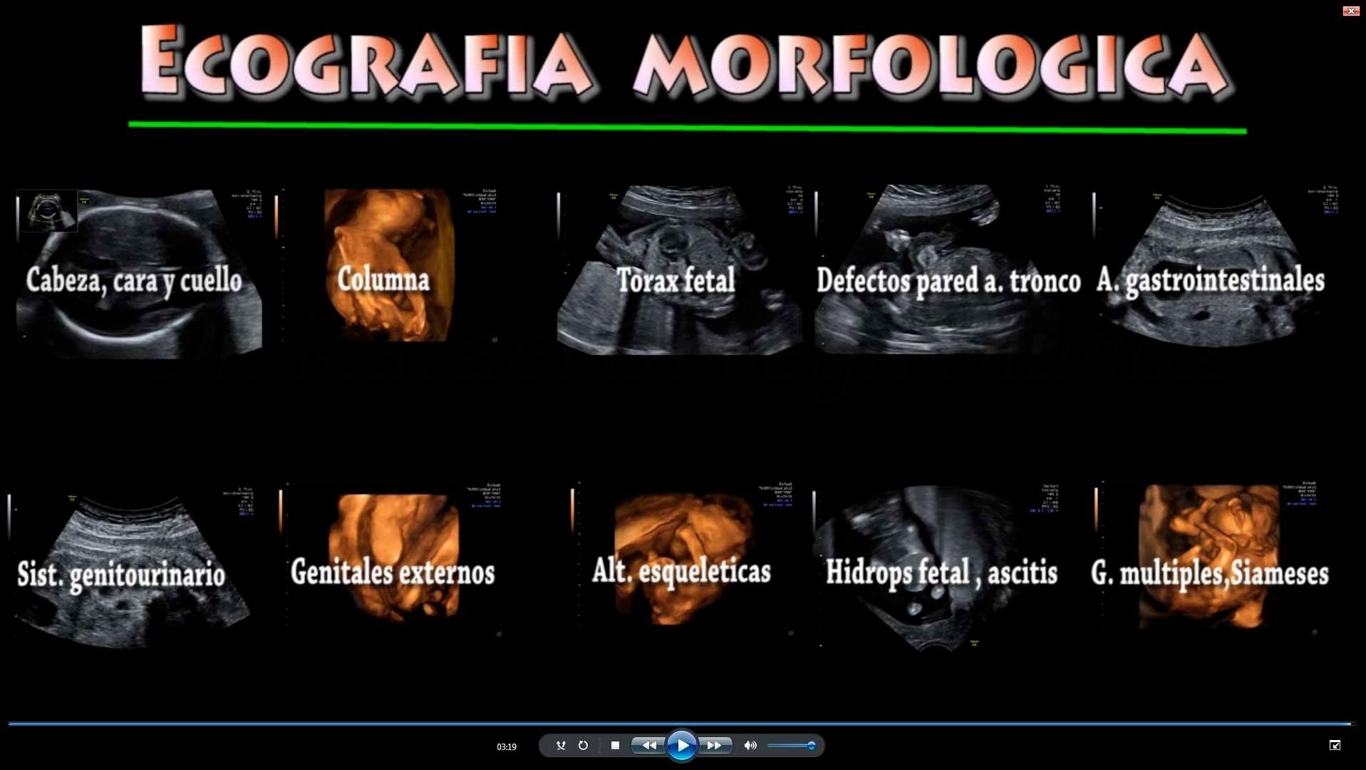 O que se ve na ecografia morfologica