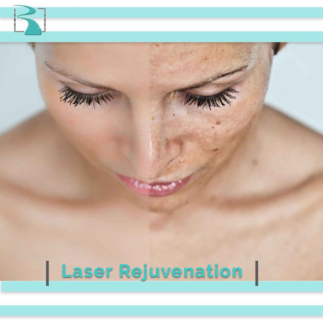 Laser Rejuvenation Laser Rejuvenation Laser Skin Care Skin