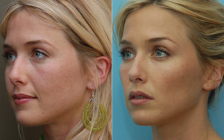 Pros, Cons and Cost of Voluma vs  Radiesse Fillers So here