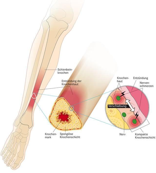 Habt ihr Erfahrung mit einer #Knochenhautentzündung oder ähnlichem? (interessanter Link zu dem Thema: http://forum.runnersworld.de/forum/gesundheit-medizin/35730-sammelthread-shin-splint-schienbein-knochenhautentzuendung.html)