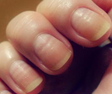 Tienes Las Uñas Onduladas Aprende Como Eliminar Esos