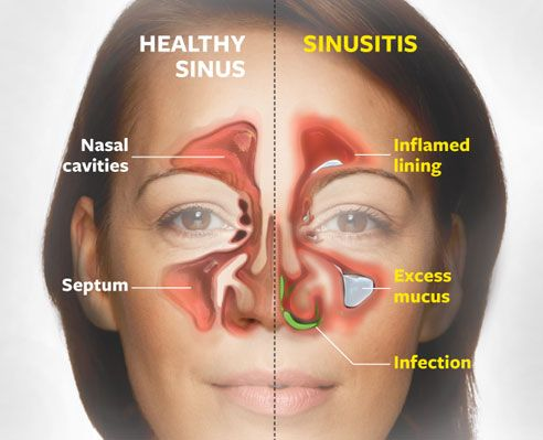 Nose Sinus And Bronchial Protocol Home Remedies For Sinus
