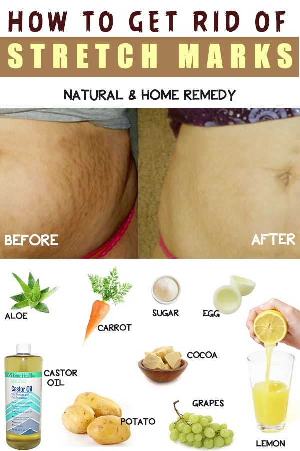 How To Get Rid Of Stretch Marks At Home Stretch Marks Sugar