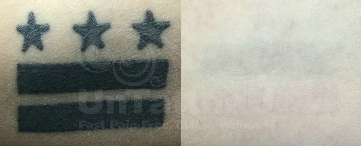 Park Art My WordPress Blog_Picosure Laser Tattoo Removal Uk