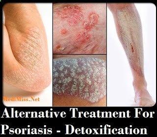 Alternative Treatment For Psoriasis - Detoxification