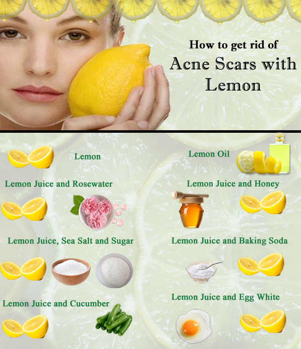 With Pimples Of How Lemon Rid Get To