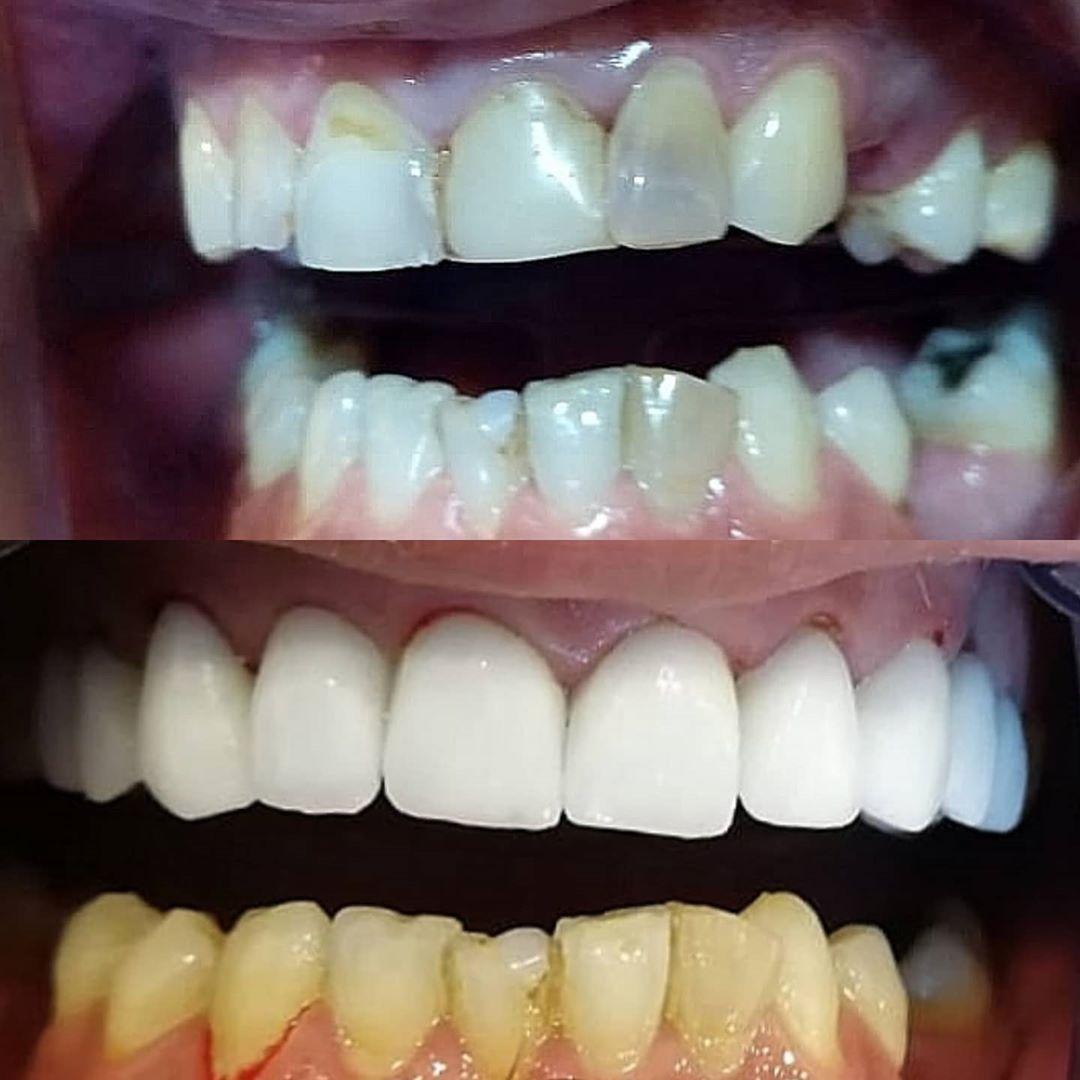 تركيب أسنان زيركون للفك العلوي الصورة قبل و بعد حقيقيه بدون اي فلتر او تعديل على الصور Ammanjordan Amman Jordan Amm Dentist Interesting Things