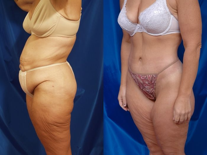 Before And After Tummy Tuck Photos Corrective Procedures