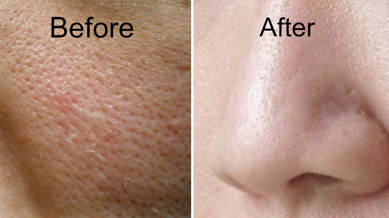 How to Get Rid of Large Pores in 3 Days   Get Smooth ...