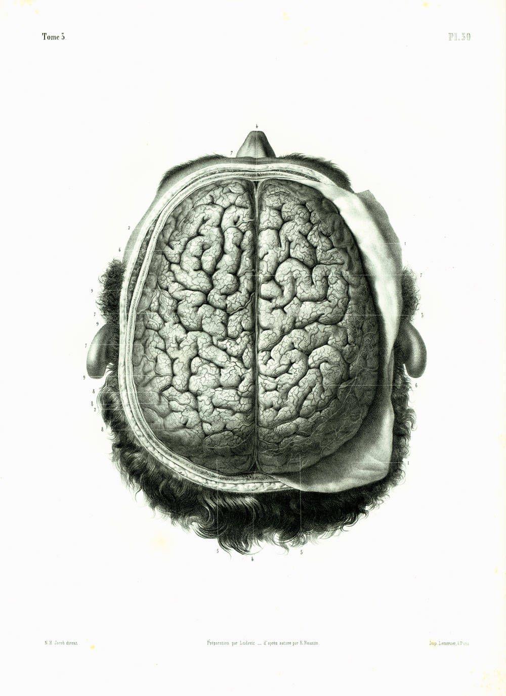 1844 Original Antique Brain Print. Human Brain. Nervous system ...
