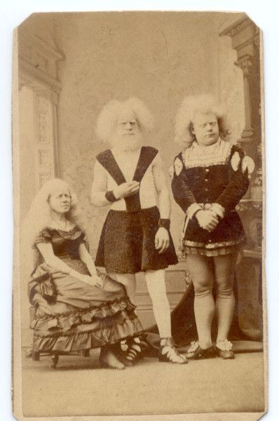 1870 Albino Family Siamese And Oddities Vintage