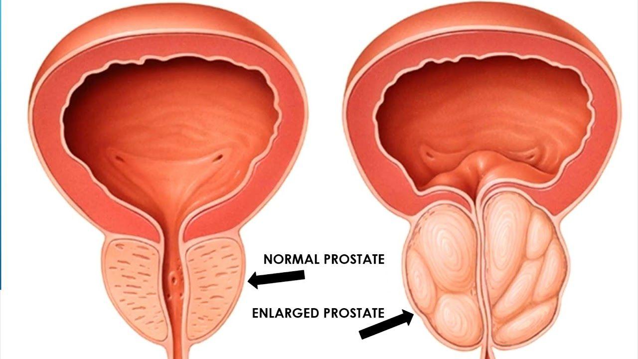 flomax vs rapaflo prostatitis
