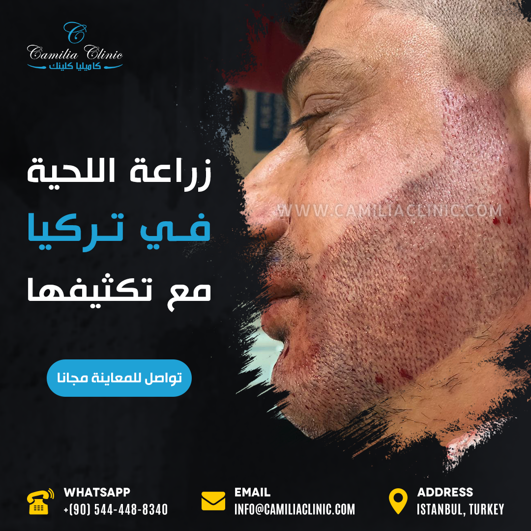 Beard Transplant In Turkey Beard Transplant Beard Transplant