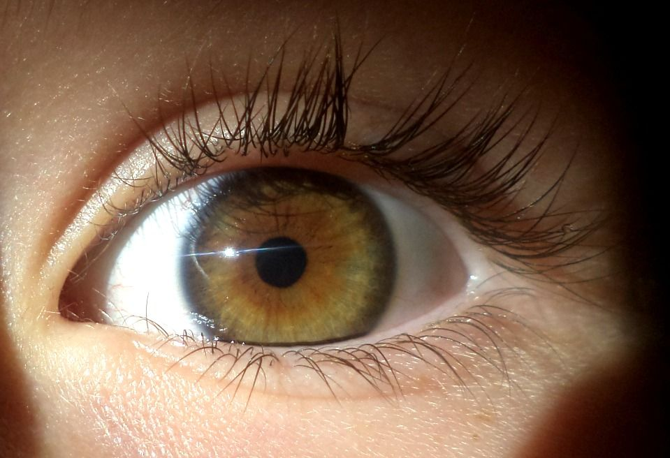 This is central heterochromia, right?