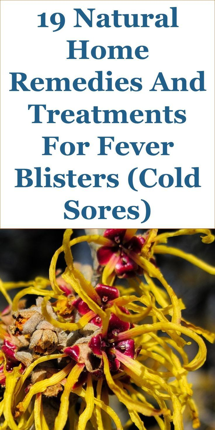 19 Quality Home Remedies For Fever Blisters Cold Sores Interior
