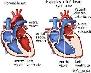 The Norwood Lillian S First Open Heart Surgery Congenital