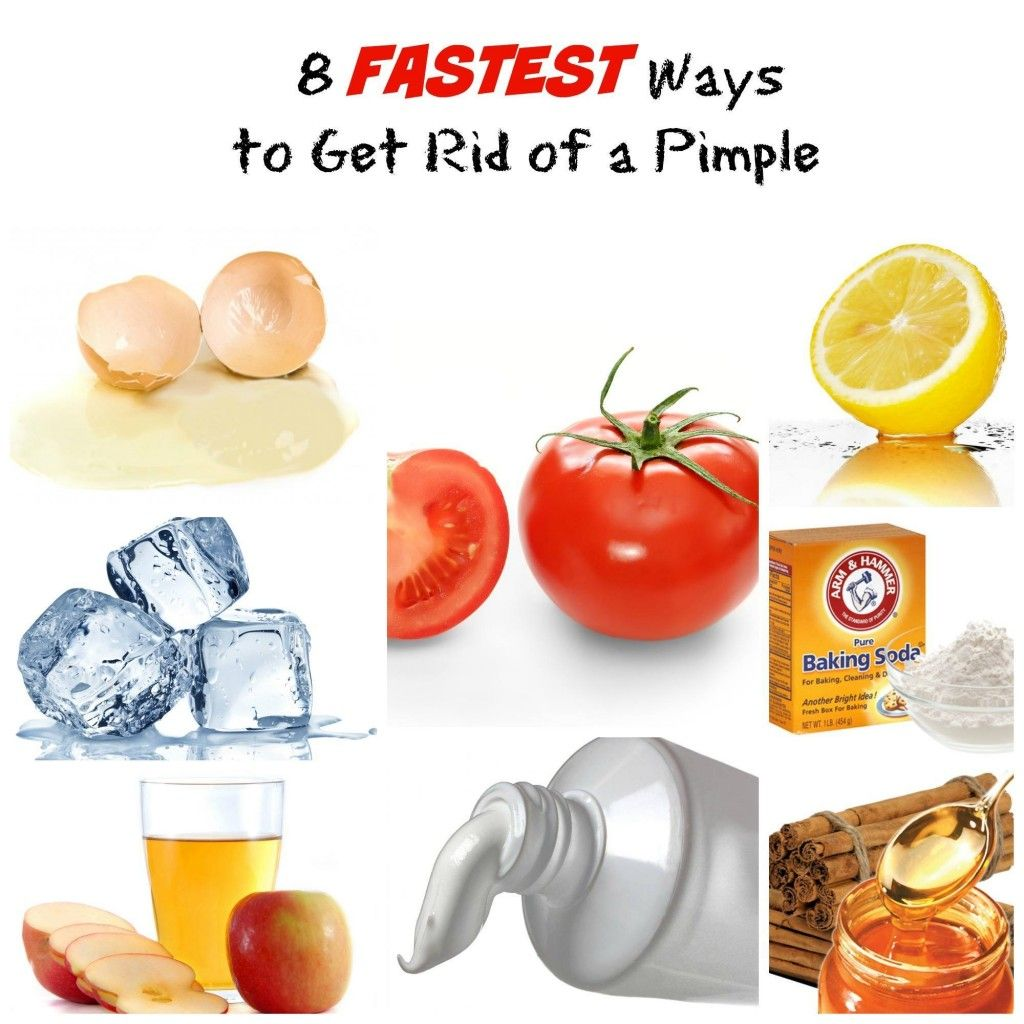Quick Way To Get Rid Of A Pimple