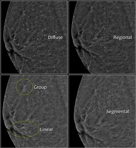 The Radiology Assistant : Bi-RADS for Mammography and ...