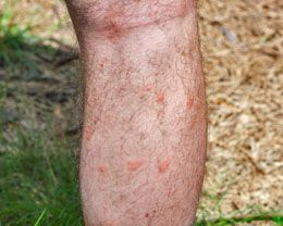 Bumps On Skin After Sun Exposure Skin Bumps What Attracts Mosquitoes Eczema Treatment