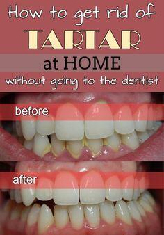 203216bf3f54be3b6825928c77113de4 - How To Get Rid Of Black Tartar On Teeth