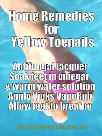 How to Get Rid of Yellow Toenails - Nail Fungus Treatment #skinfungustreatment #bestfootfungustreatm...