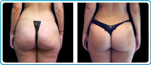 Perfect Body Laser And Aesthetics Specializes In Cavi Lipo