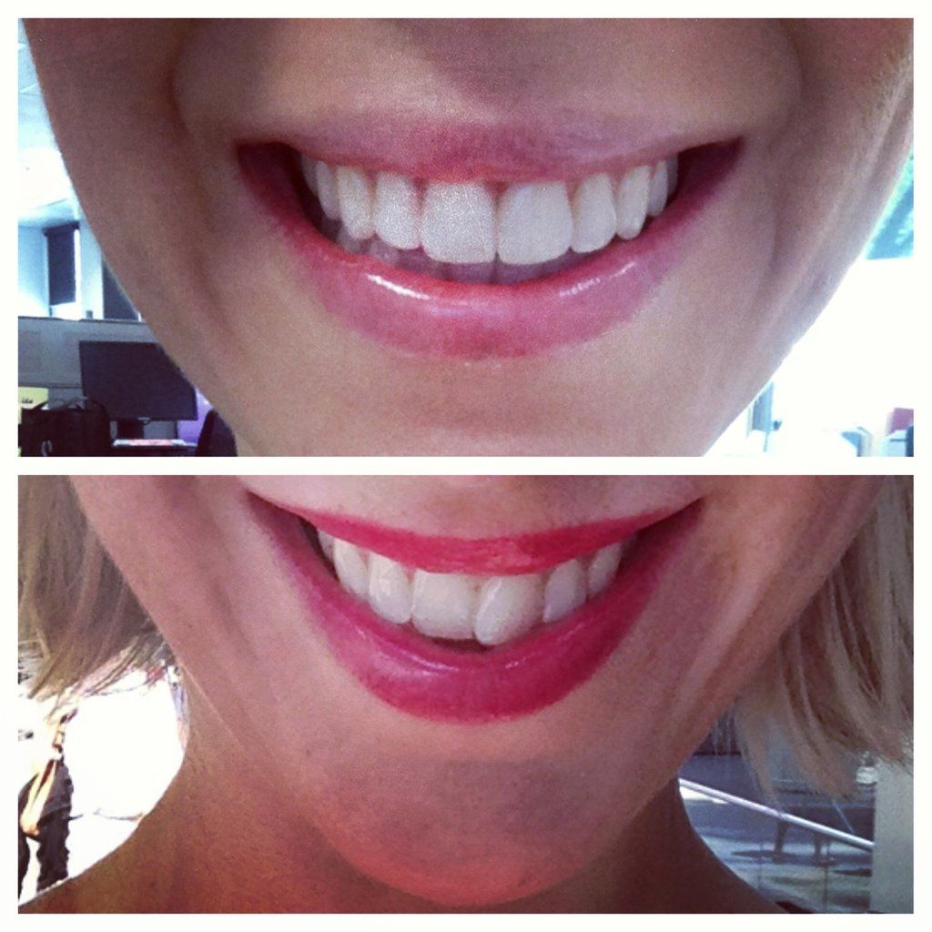 Full review of invisalign including before and after