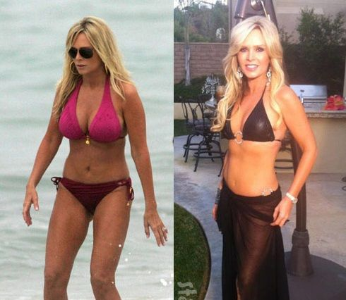 Young Breast Augmentation Before And After Tamra Barney Pl...