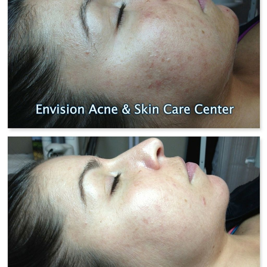 """""""Before I started to work with Envision Acne & Skin Care ..."""