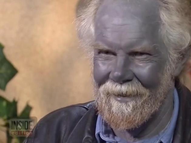 "Paul Karason Dies; Medical Mystery Known as ""Blue Man"" or ..."