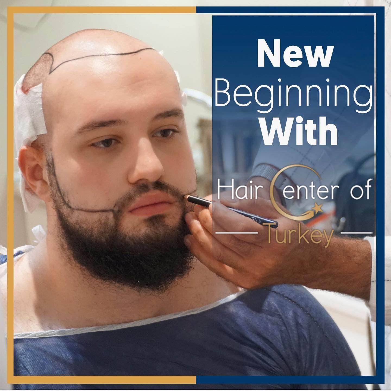 Avec Hair Center Of Turkey Touts Et Possible Sac Dokulmesi