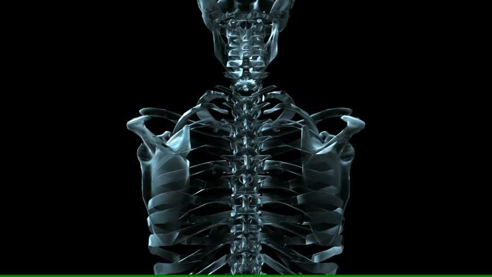 137905412-wirbel-koerper-roentgen-wirbelsaeule-anatomie.jpg (960×540 ...
