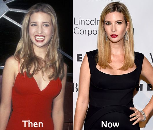 Ivanka Trump Plastic Surgery Before And After Celebrity Plastic Surgery Cosmetic Surgery Cost Plastic Surgery