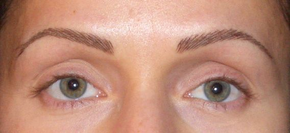 Before And After Pictures Permanent Makeup Eyeliner Eyebrow Hair Transplant Botox Fillers