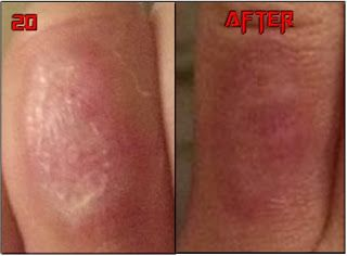 Chemical Peels Tattoo Removal - Before & After | Chemical peels ...